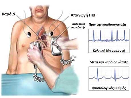 Καρδιομετατροπή