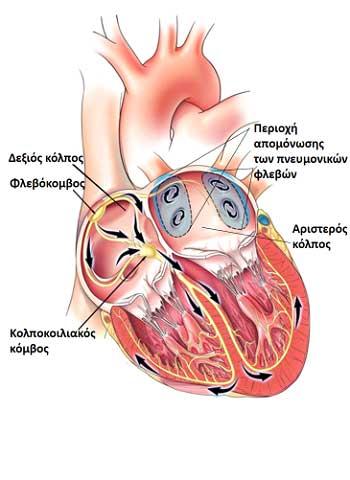 H κατάλυση (ablation) της κολπικής μαρμαρυγής είναι μία ελάχιστα επεμβατική θεραπεία χρησιμοποιείται για την αντιμετώπιση της κολπικής μαρμαρυγής.