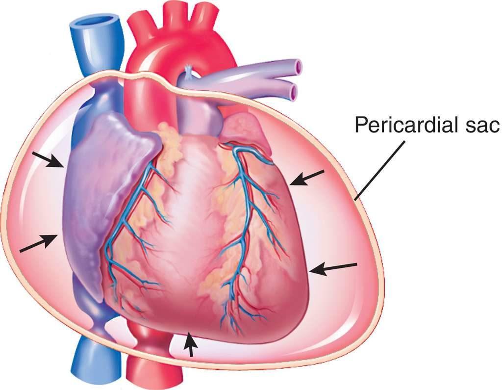 Επιπωματισμός καρδιάς